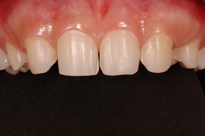 Kronen und Brücken | Zahnarzt Binningen Dr  Marcel Iff